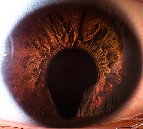 Human Eye 12