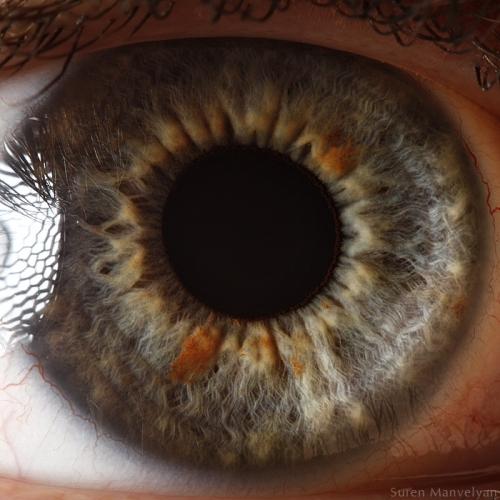 Human Eye 13
