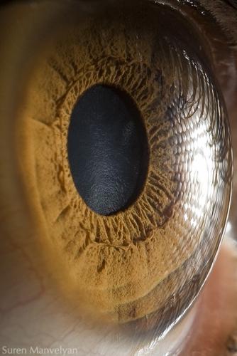 Human Eye 17