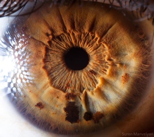 Human Eye 31