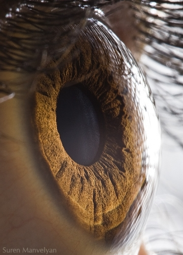 Human Eye 7