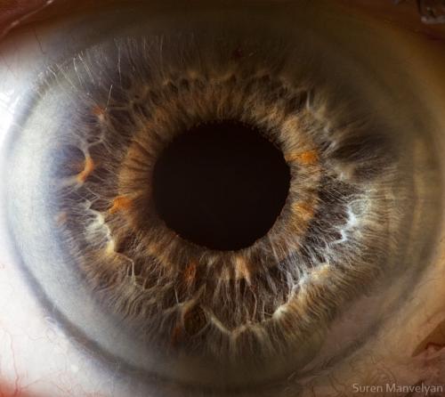 Human Eye 11