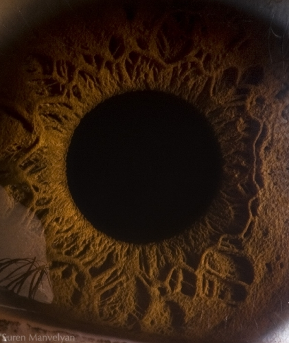 Human Eye 18