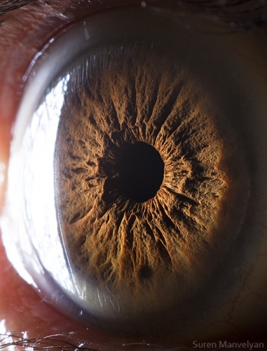 Human Eye 19