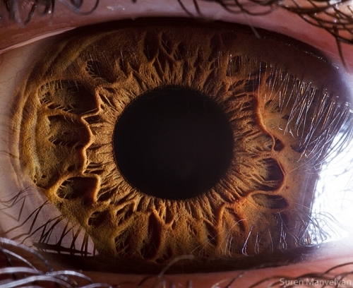 Human Eye 20