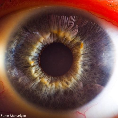 Human Eye 21