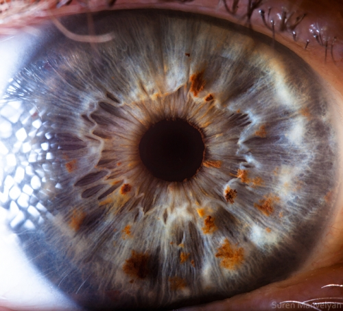Human Eye 29