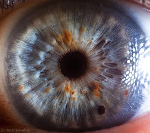 Human Eye 30