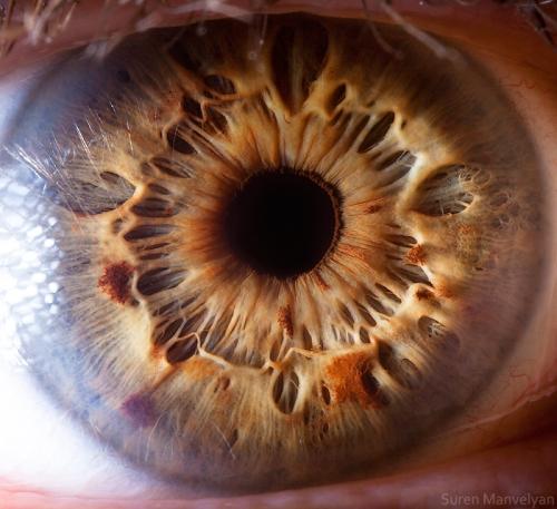 Human Eye 33