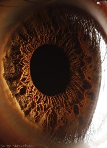 Human Eye 5